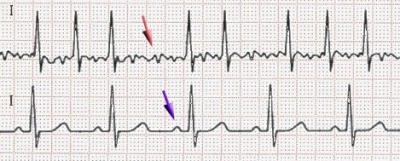 Paramedic's Corner: Atrial fibrillation, Part I
